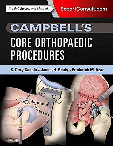 Portada del libro 9780323357630 Campbell's Core Orthopaedic Procedures