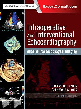 Portada del libro 9780323358255 Intraoperative and Interventional Echocardiography. Atlas of Transesophageal Imaging (Online and Print)
