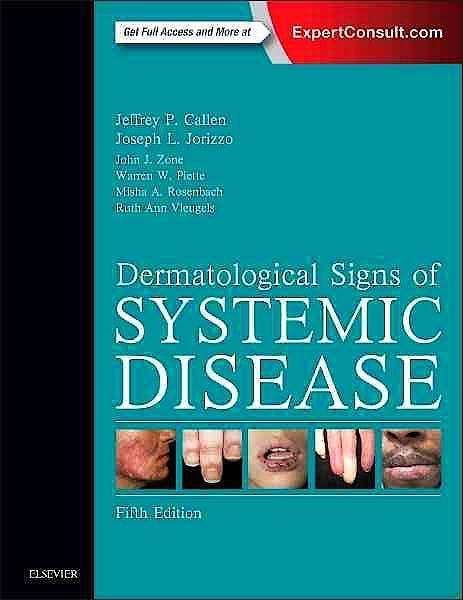 Portada del libro 9780323358293 Dermatological Signs of Systemic Disease