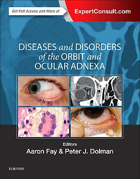 Portada del libro 9780323377232 Diseases and Disorders of the Orbit and Ocular Adnexa (Online and Print)