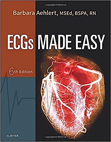 Portada del libro 9780323401302 ECGS Made Easy