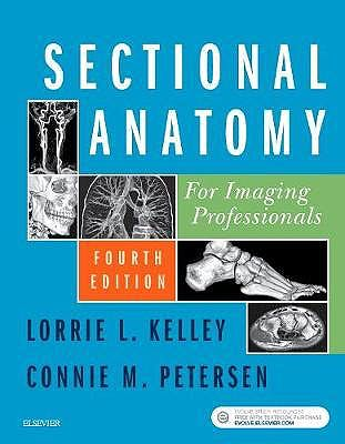 Portada del libro 9780323414876 Sectional Anatomy for Imaging Professionals