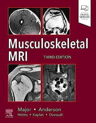 Portada del libro 9780323415606 Musculoskeletal MRI