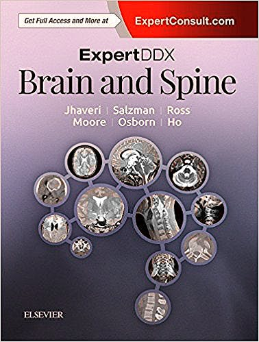 Portada del libro 9780323443081 Expert DDX: Brain and Spine (Print and Online)