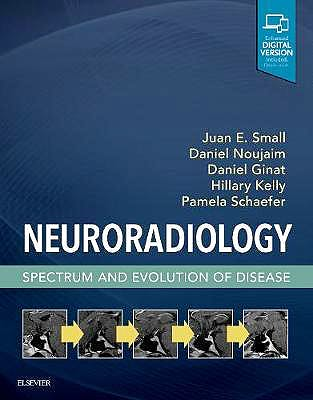 Portada del libro 9780323445498 Neuroradiology. Spectrum and Evolution of Disease (Print and Online)