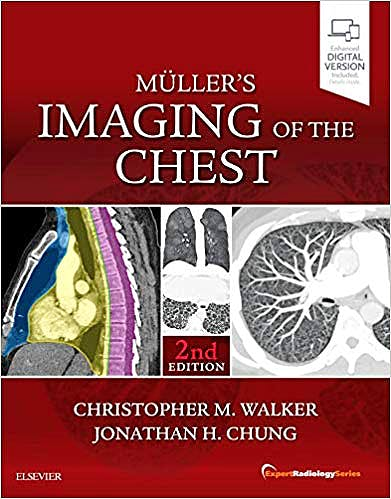 Portada del libro 9780323462259 Müller's Imaging of the Chest (Expert Radiology Series) (Print and Online)