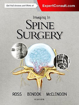 Portada del libro 9780323485548 Imaging in Spine Surgery (Online and Print)