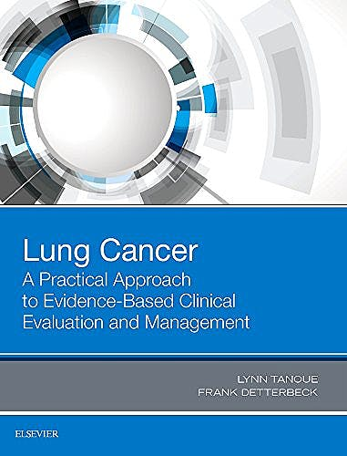 Portada del libro 9780323485654 Lung Cancer. A Practical Approach to Evidence-Based Clinical Evaluation and Management