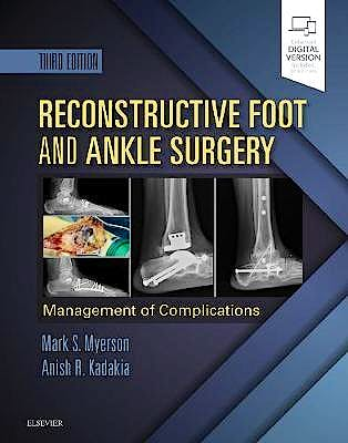 Portada del libro 9780323496933 Reconstructive Foot and Ankle Surgery. Management of Complications (Print and Online)