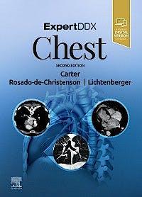 Portada del libro 9780323524827 Expert DDX: Chest (Print + Online)