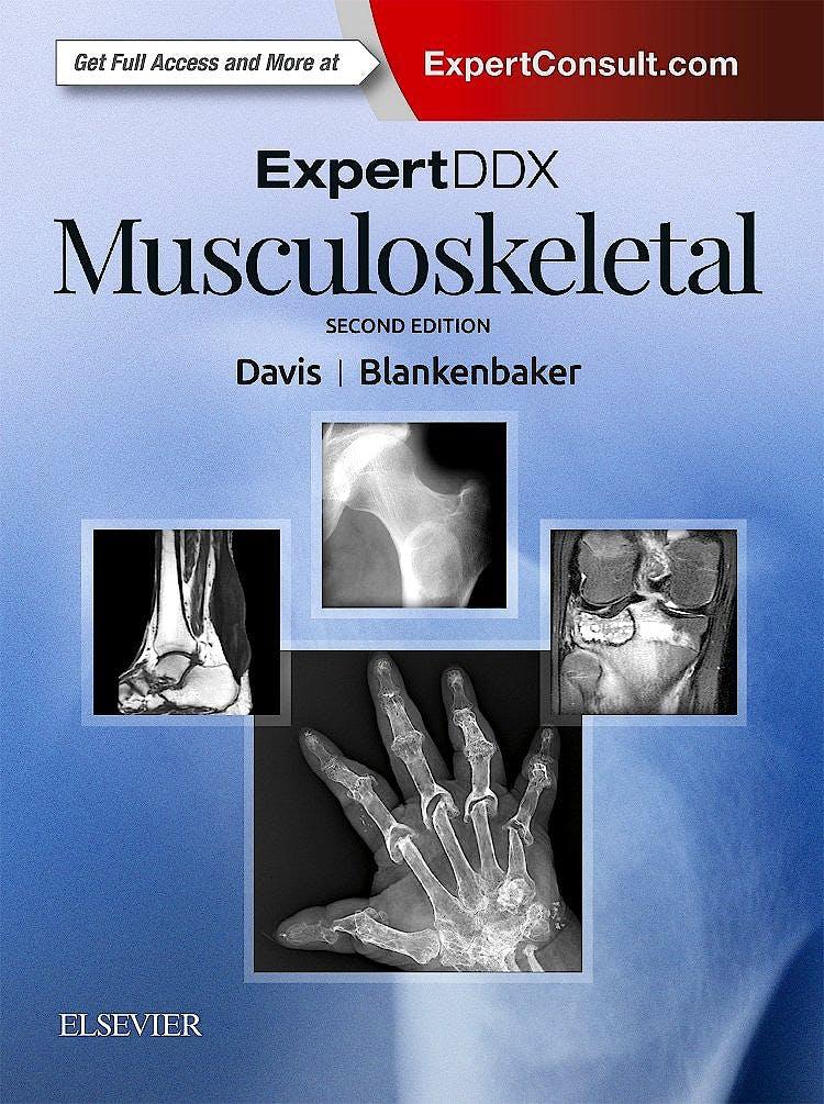 Portada del libro 9780323524834 Expert DDX: Musculoskeletal (Print and Online)