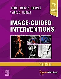Portada del libro 9780323612043 Image-Guided Interventions (Expert Radiology Series)