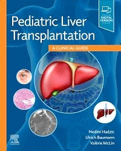 Portada del libro 9780323636711 Pediatric Liver Transplantation. A Clinical Guide