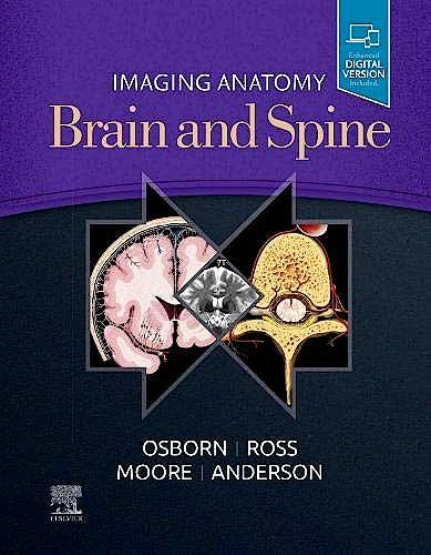 Portada del libro 9780323661140 Imaging Anatomy Brain and Spine