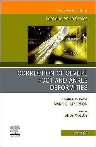 Portada del libro 9780323712958 Correction of Severe Foot and Ankle Deformities. An Issue of Foot and Ankle Clinics
