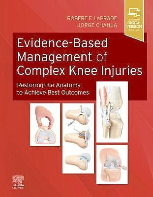 Portada del libro 9780323713108 Evidence-Based Management of Complex Knee Injuries. Restoring the Anatomy to Achieve Best Outcomes