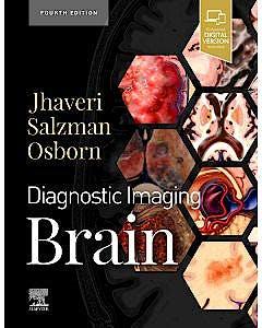 Portada del libro 9780323756204 Diagnostic Imaging. Brain