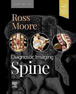 Portada del libro 9780323793995 Diagnostic Imaging. Spine