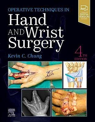 Portada del libro 9780323794152 Operative Techniques in Hand and Wrist Surgery