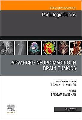 Portada del libro 9780323794213 Advanced Neuroimaging in Brain Tumors (An Issue of Radiologic Clinics)