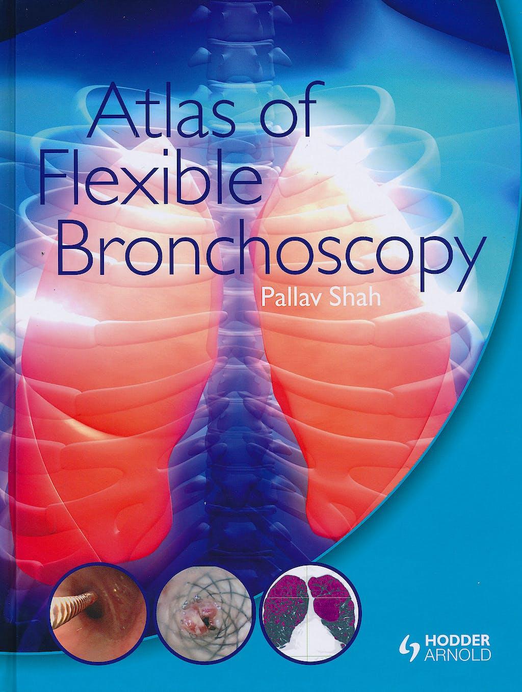 Portada del libro 9780340968321 Atlas of Flexible Bronchoscopy