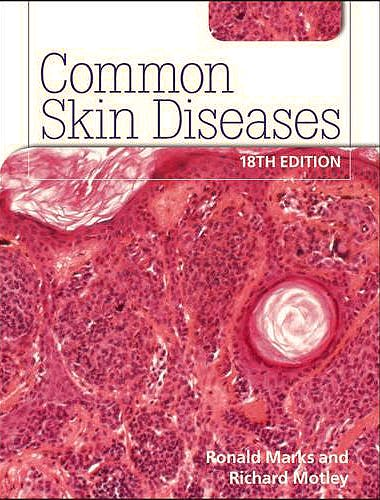 Portada del libro 9780340983508 Common Skin Diseases