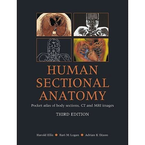Portada del libro 9780340985168 Human Sectional Anatomy. Pocket Atlas of Body Sections, Ct and Mri Images