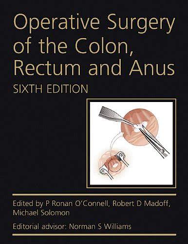 Portada del libro 9780340991275 Operative Surgery of the Colon, Rectum and Anus