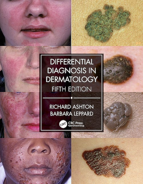 Portada del libro 9780367085971 Differential Diagnosis in Dermatology