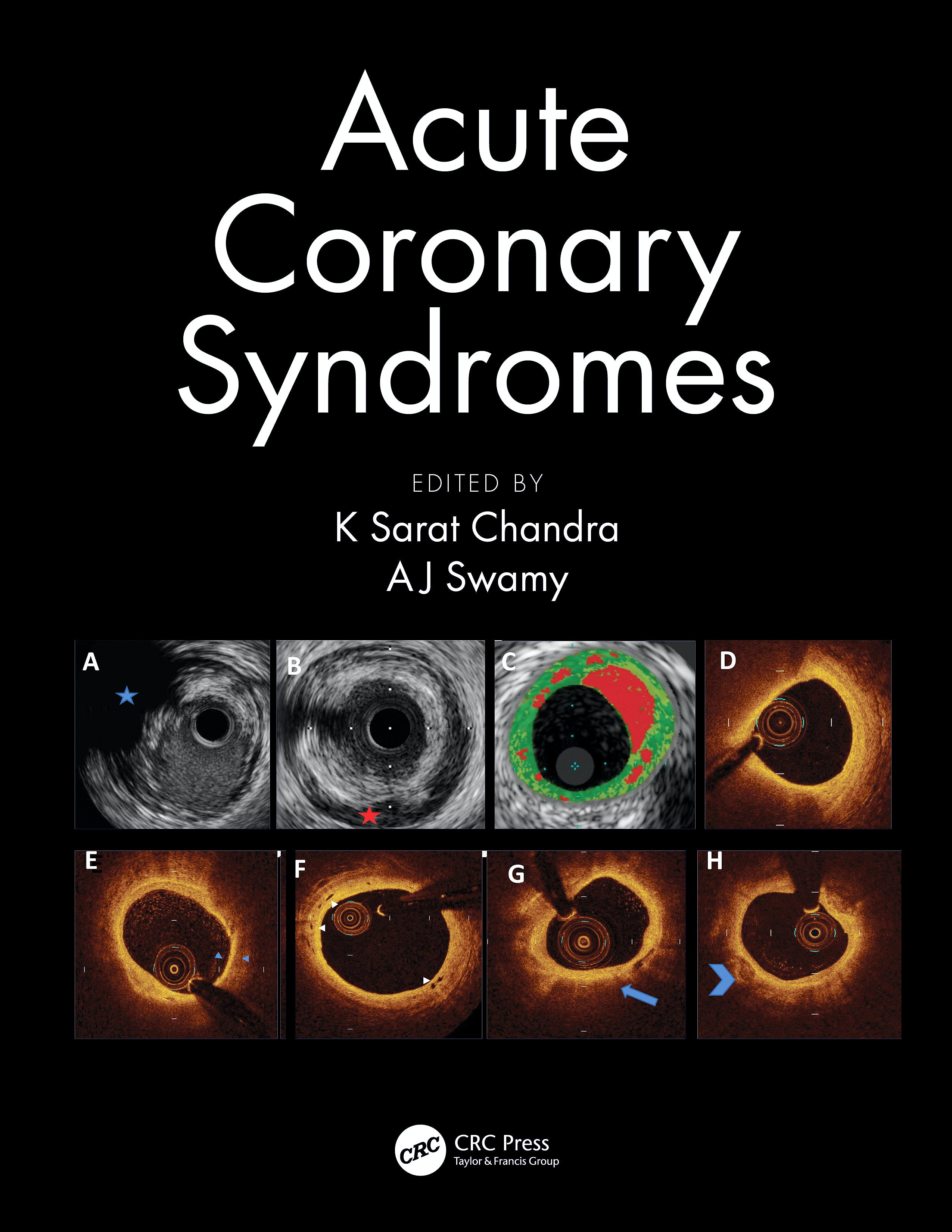 Portada del libro 9780367112226 Acute Coronary Syndromes