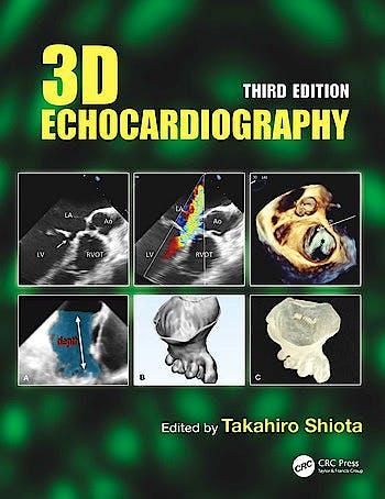 Portada del libro 9780367252885 3D Echocardiography