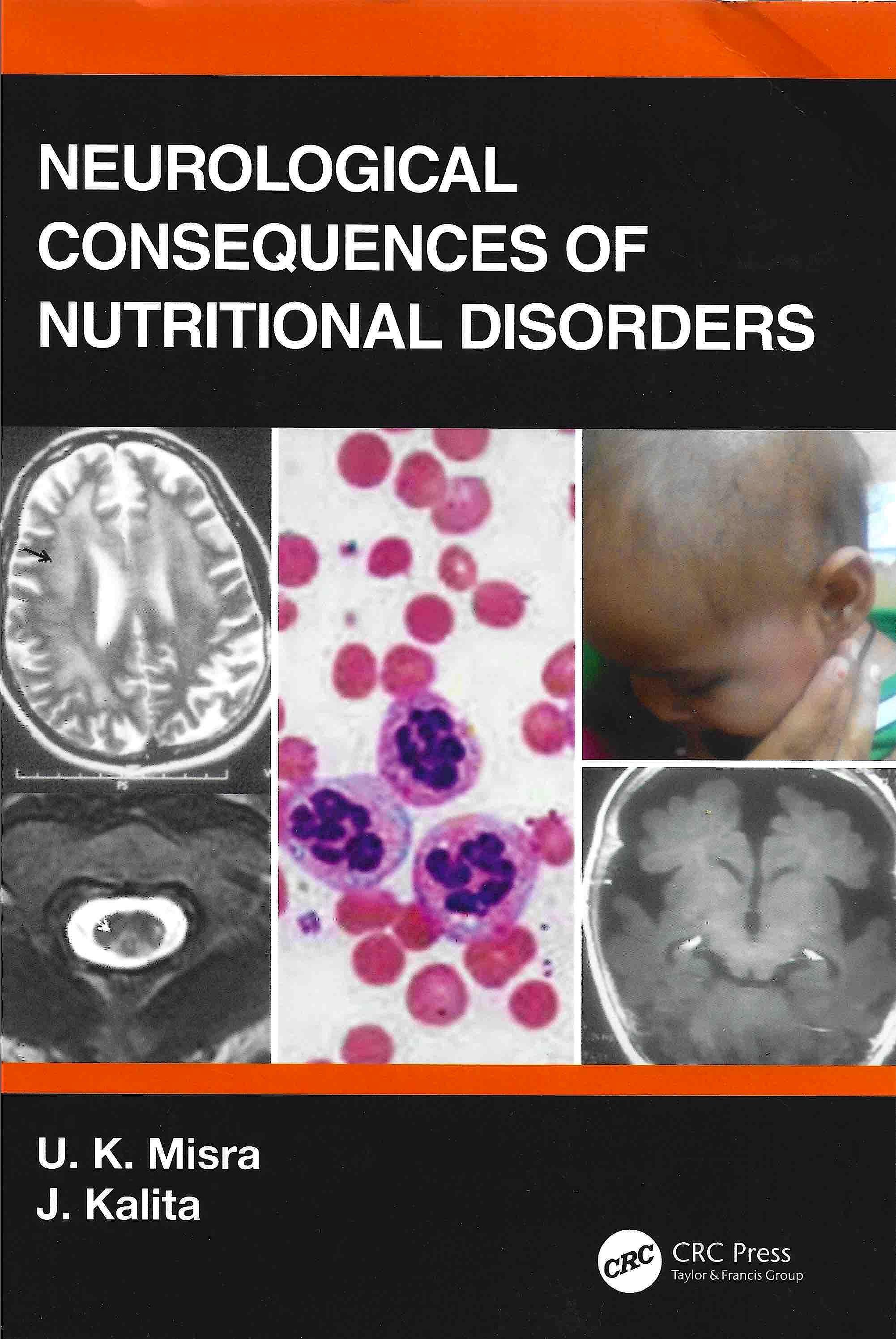 Portada del libro 9780367313449 Neurological Consequences of Nutritional Disorders