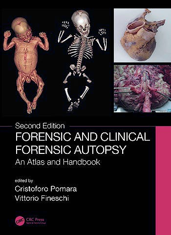 Portada del libro 9780367330712 Forensic and Clinical Forensic Autopsy. An Atlas and Handbook