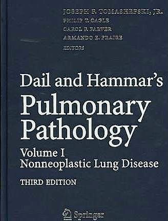 Portada del libro 9780387721392 Dail and Hammar's Pulmonary Pathology Volume I: Non-neoplastic Lung Disease Volume II: Neoplastic Lung Disease
