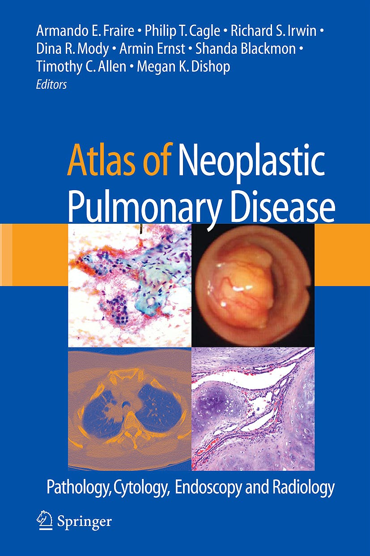 Portada del libro 9780387898384 Atlas of Neoplastic Pulmonary Disease: Pathology, Cytology, Endoscopy and Radiology