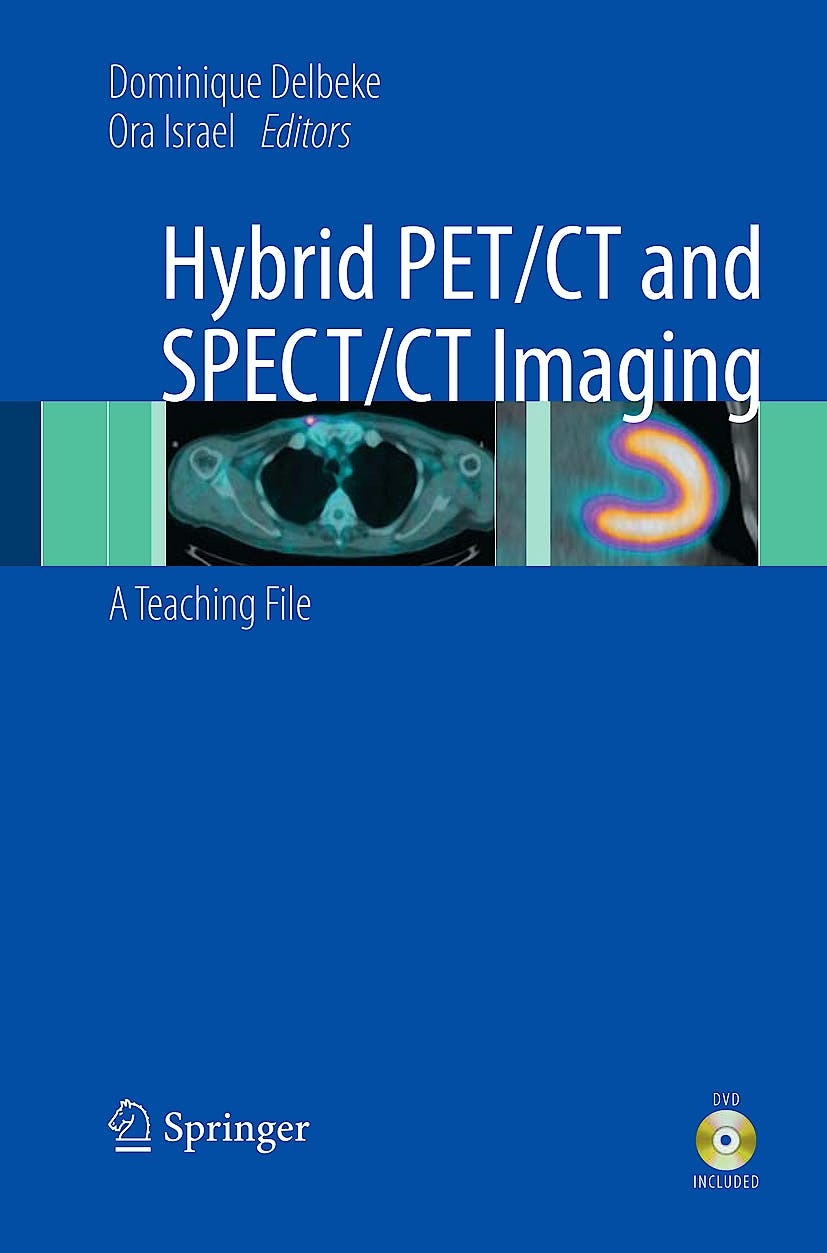 Portada del libro 9780387928197 Hybrid PET/CT and SPECT/CT Imaging. A Teaching File + CD-ROM (Hardcover)