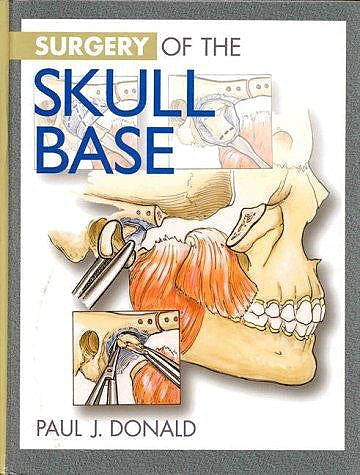 Portada del libro 9780397512898 Surgery of the Skull Base