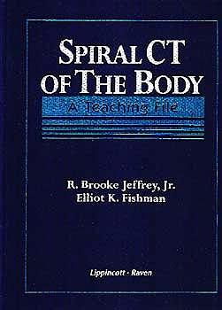 Portada del libro 9780397516681 Spiral Ct of the Body. a Teaching File
