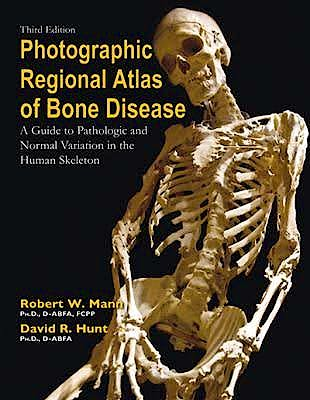 Portada del libro 9780398088262 Photographic Regional Atlas of Bone Disease. a Guide to Pathologic and Normal Variation in the Human Skeleton