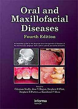 Portada del libro 9780415414944 Oral and Maxillofacial Diseases