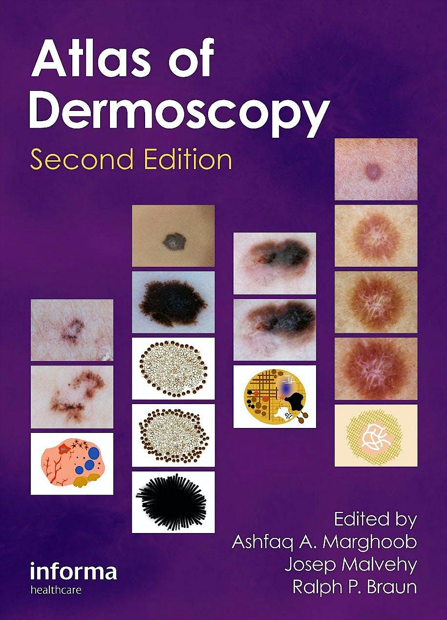 Portada del libro 9780415458955 Atlas of Dermoscopy