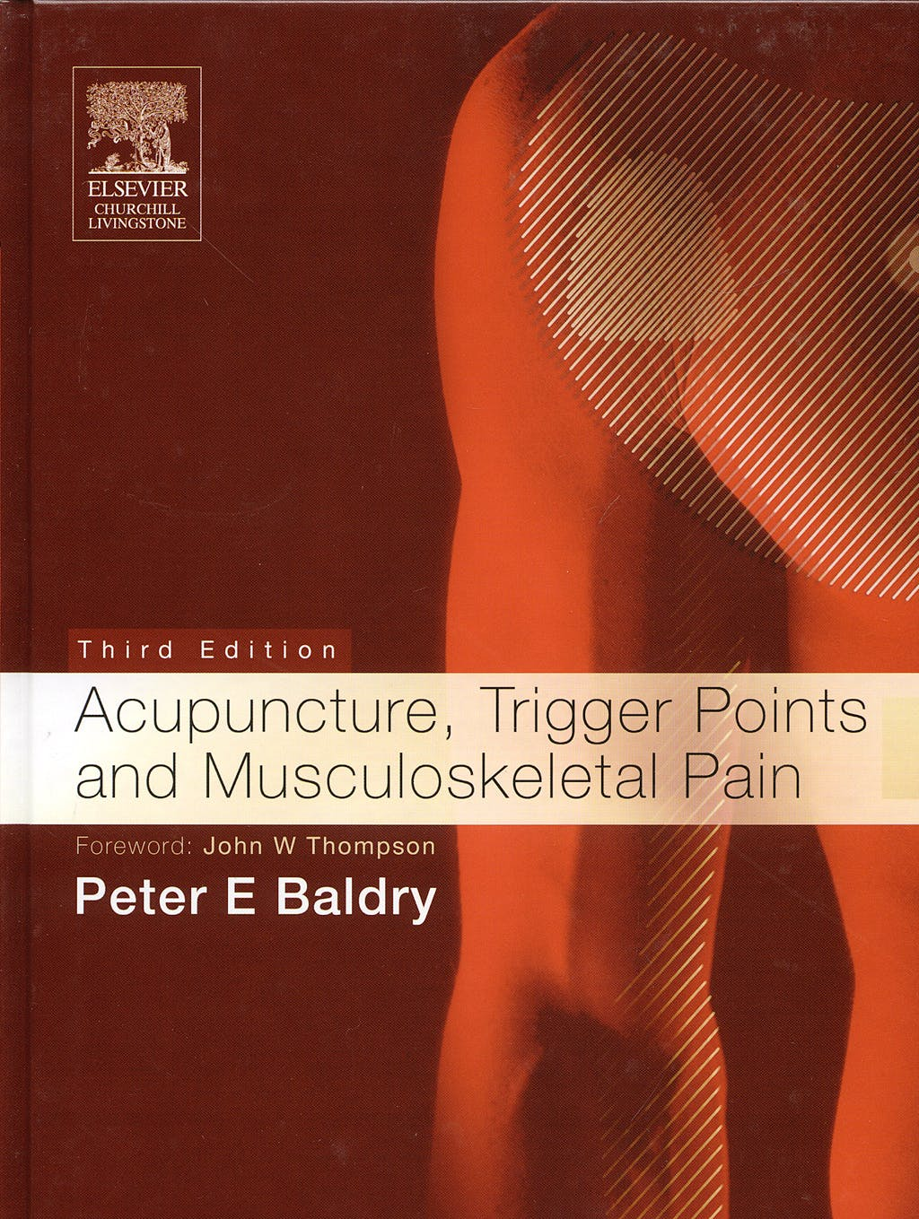 Portada del libro 9780443066443 Acupuncture, Trigger Points and Musculoskeletal Pain