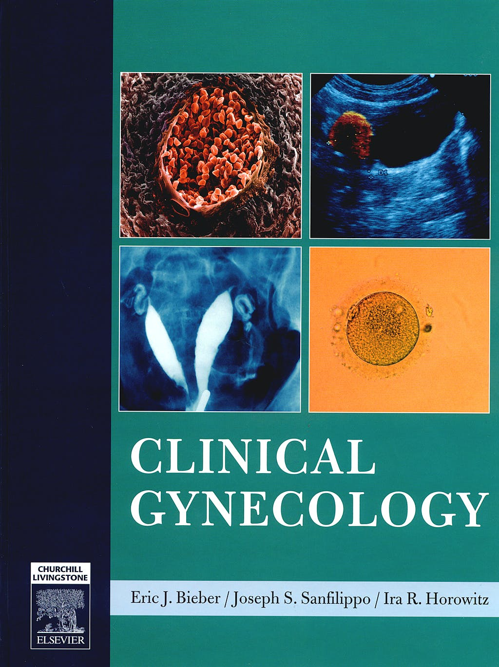 Portada del libro 9780443066917 Clinical Gynecology