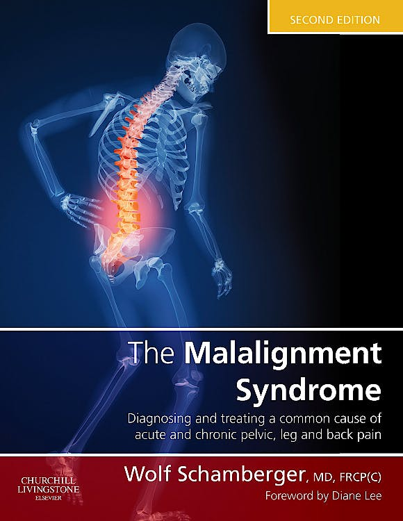 Portada del libro 9780443069291 The Malalignment Syndrome. Diagnosis and Treatment of Common Pelvic and Back Pain