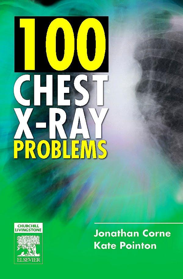 Portada del libro 9780443070129 100 Chest X-Ray Problems