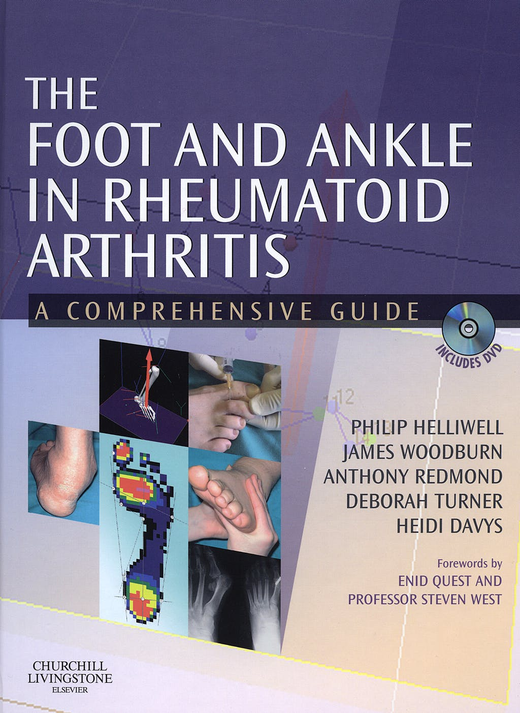 Portada del libro 9780443101106 The Foot and Ankle in Rheumatoid Arthritis. A Comprehensive Guide + DVD-ROM