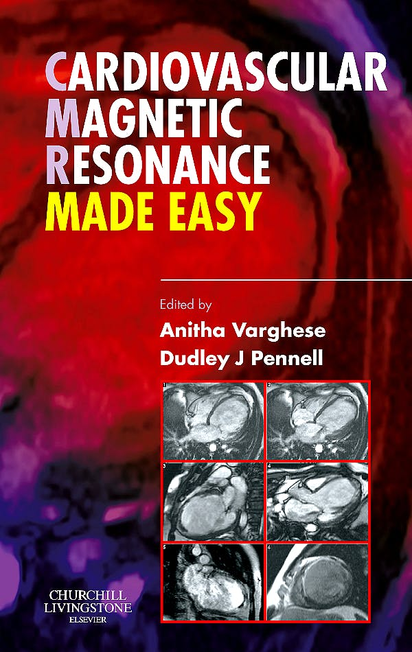 Portada del libro 9780443103018 Cardiovascular Magnetic Resonance Made Easy