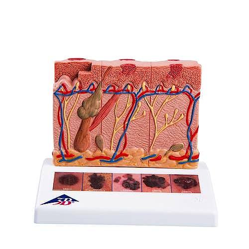Modelo de Cancer de Piel