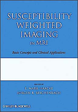 Portada del libro 9780470043431 Susceptibility Weighted Imaging in Mri. Basic Concepts and Clinical Applications