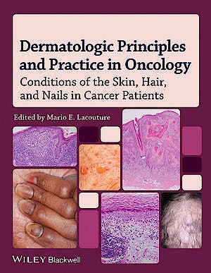 Portada del libro 9780470621882 Dermatologic Principles and Practice in Oncology. Conditions of the Skin, Hair, and Nails in Cancer Patients
